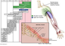 Brachial Plexus Anatomy Diagram, Erb's palsy Injury, Anatomy of Brachial Plexus