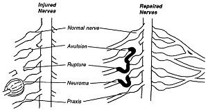 Nerve Graft Diagram, a nerve may be grafted if there is a rupture or avulsion.