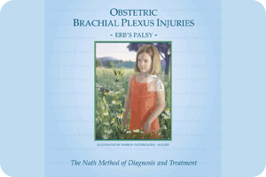 Obstetric Brachial Plexus Injuries