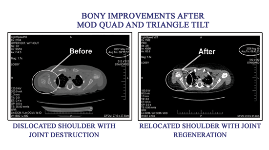 Bony Improvement - Before and After - Mod-Quad and TT